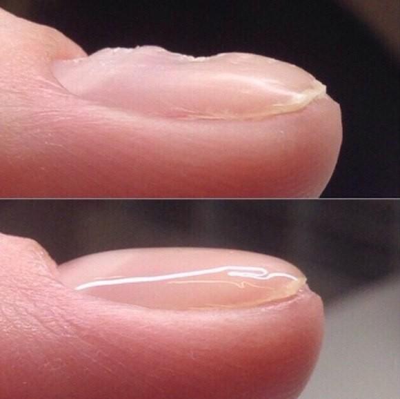 Выравнивание ногтевой пластины м. Братиславская